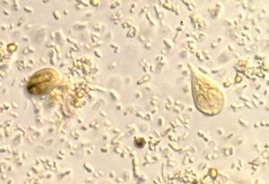 Giardia cdc treatment. A belgyógyászat alapjai 1.