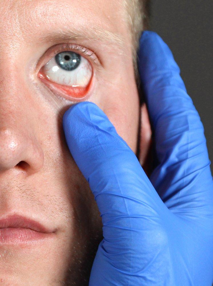 parazita gazdaszervezetek típusai férfiak condyloma gyógyszere