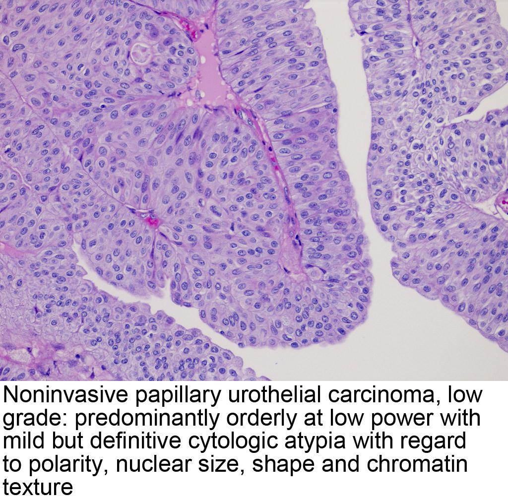 papilláris urothelialis tumor