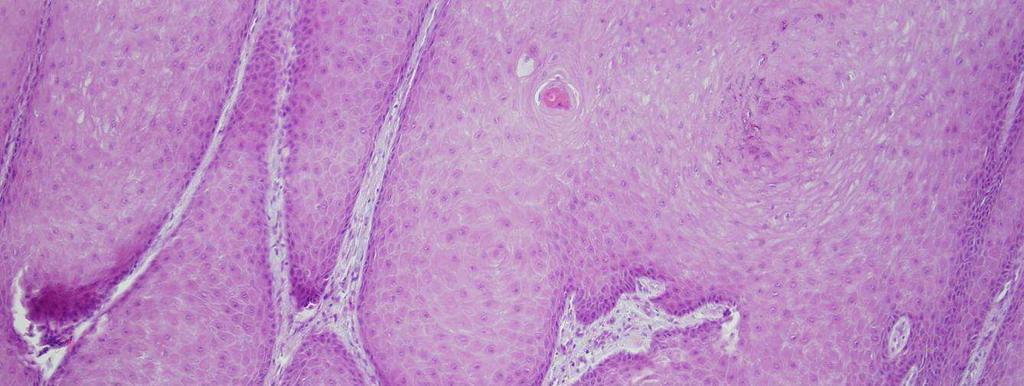 exophyticus nyaki condyloma