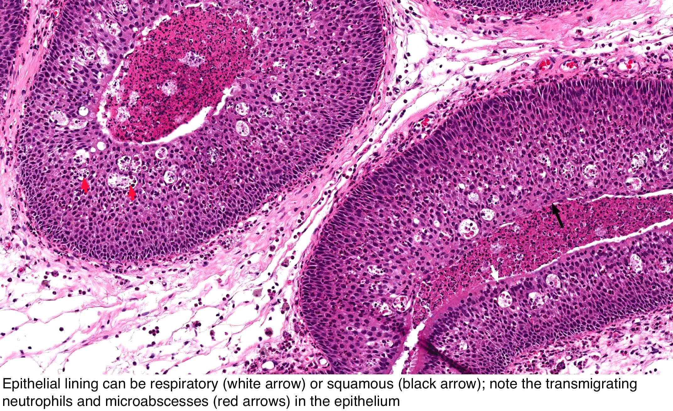 Klinikai vizsgálatok a Fej- és nyaki daganatok - Klinikai vizsgálatok nyilvántartása - ICH GCP