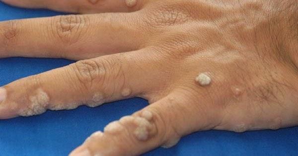 felnőtt féreg tabletták a fokhagyma a paraziták ellensége