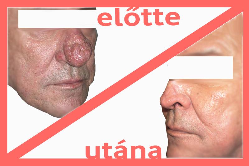 Fordított papilloma orr tünetei)