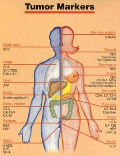 gyomorrák tumor markerek hpv szemölcsök szürke s anatómia