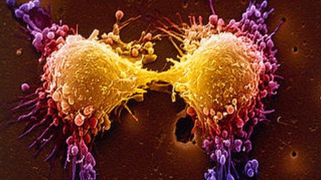 hasi fájdalmat okozó rák