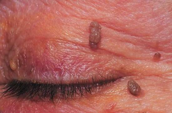 hónalj papilloma gyulladás