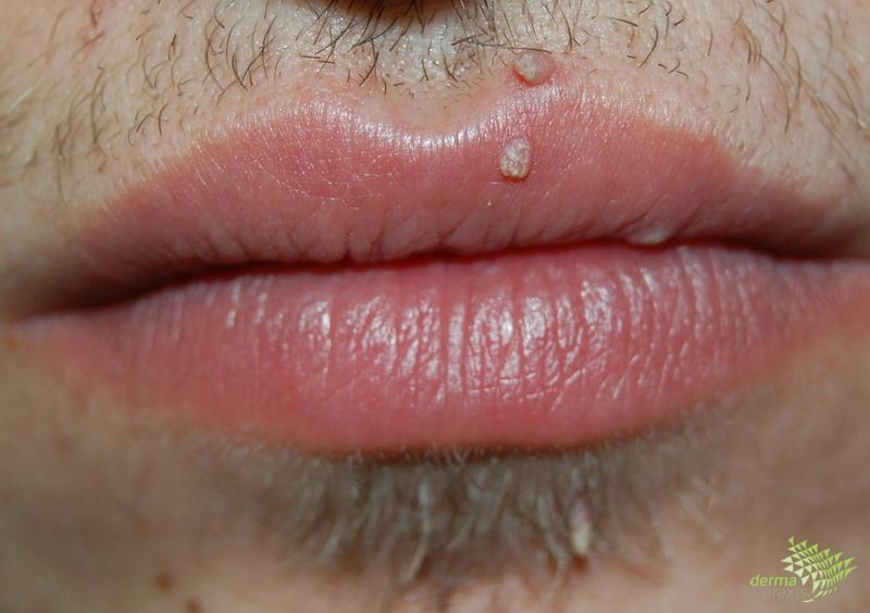 hpv száj, ahogy megnyilvánul az orvos előírja a vastagbél méregtelenítését