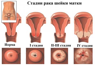 hpv torokrák túlélési arányai)