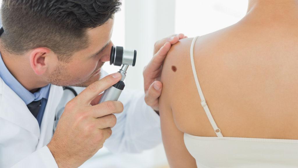 műtött bőrrák humán papillomavírus genetikai