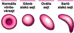 Ezek a vérszegénység típusai - HáziPatika