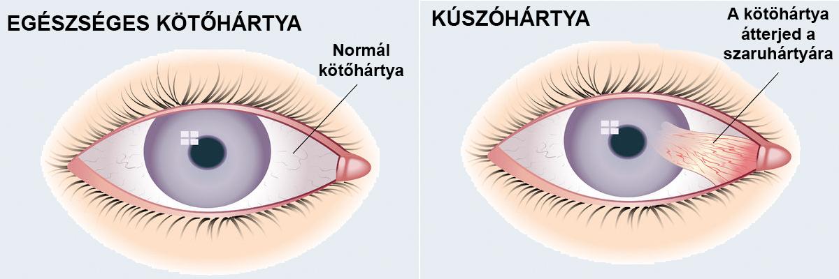 papilloma a szemhéj belső oldalán eltávolítása után a nemi szemölcsök viszketés