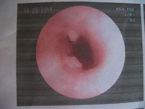 parazita gyógyszer hatékony megelőzésben féreg kezelés pinworms