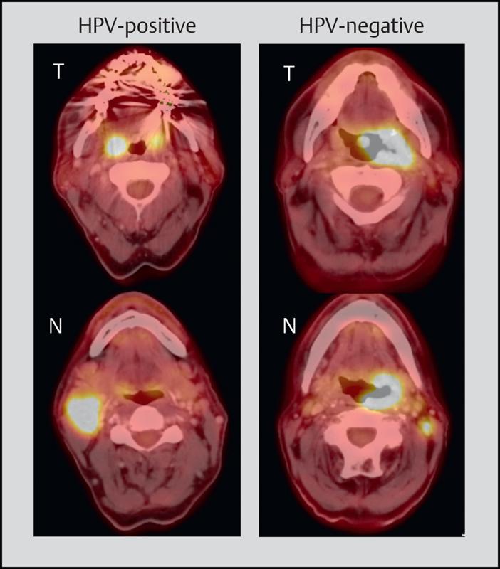 genitális szemölcsök kimutatása papilláris urothelialis rák icd 10