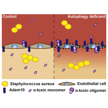 staphylococcus toxin