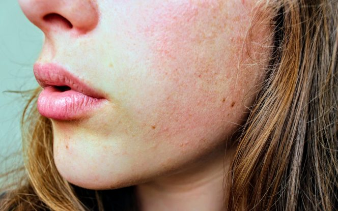 stressz dermatitis)