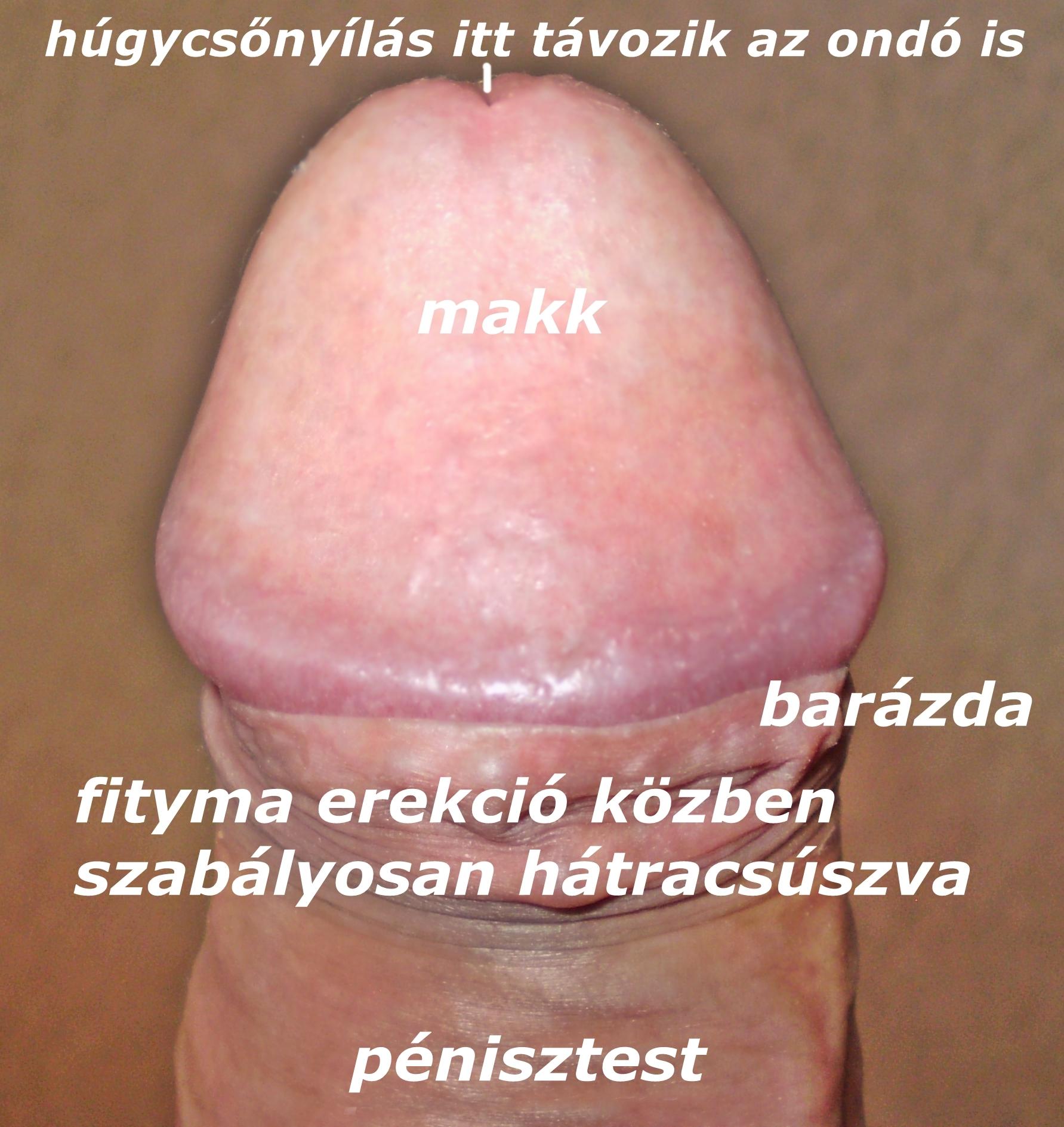 szemölcsök a testen férfiaknál)