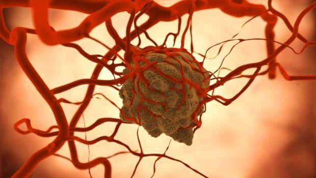 Fej-nyaki daganatok