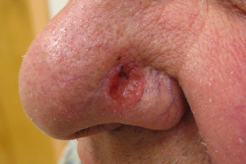 a bőrrák várható élettartama hogyan lehet eltávolítani a szemölcsöket a nyelvről