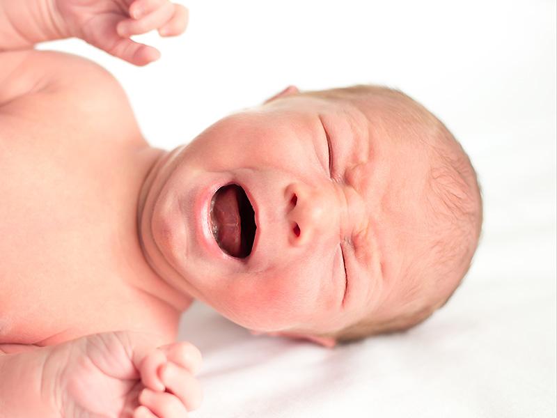 papillomatosis csecsemőknél)
