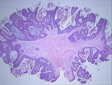 fibroepithelialis papilloma polip