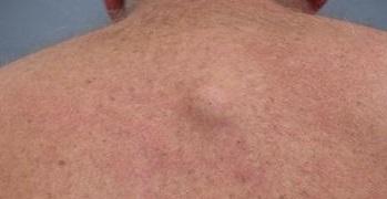 A papillomák veszélyesek a testre? Milyen típusú tumorok vannak?