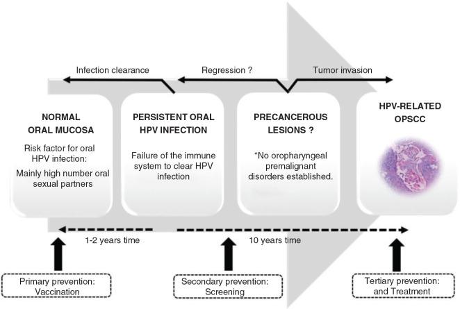 HPV-pozitív oropharyngealis rák - HPV-positive oropharyngeal cancer - ifal60.hu