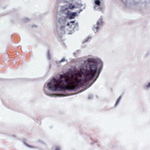 enterobius vermicularis tojás címkézett ábra