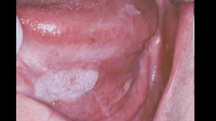 humán papillomavírus hím)