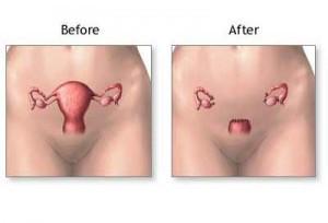 peritonealis rák teljes méheltávolítás után talán giardia, hogy jól legyen a vízben